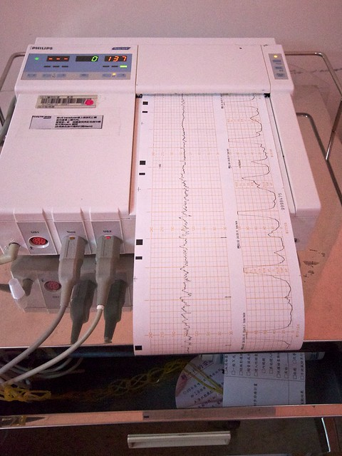 Heartbeats And Contractions Regular