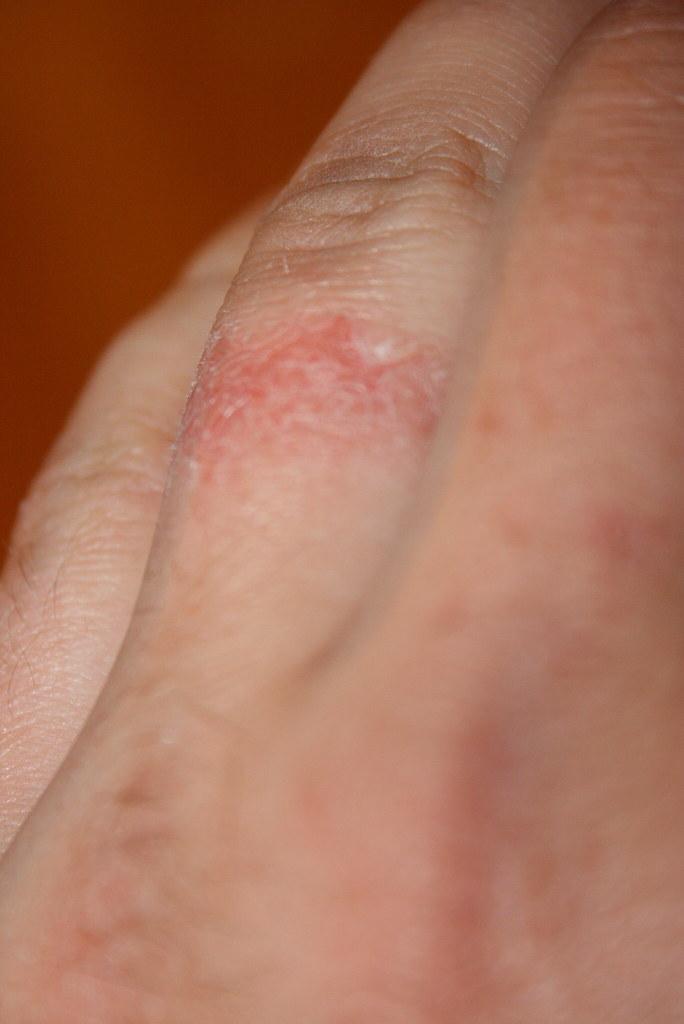 Self 154 - Bleach burn   some bleach got underneath my weddi