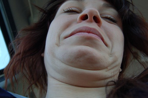 double chin alicia