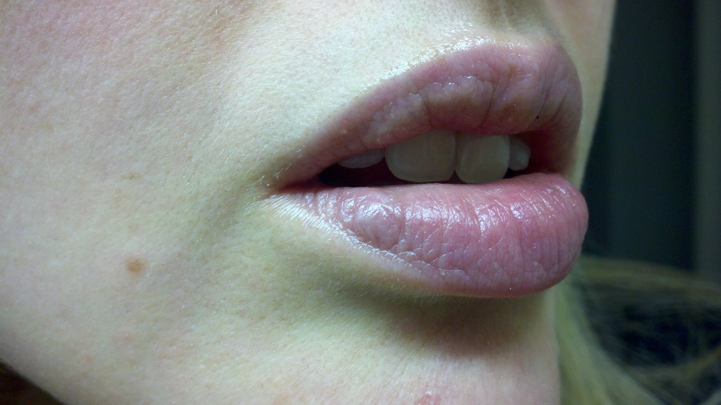Lips | My dermatologist says this discolored bump on my lowe
