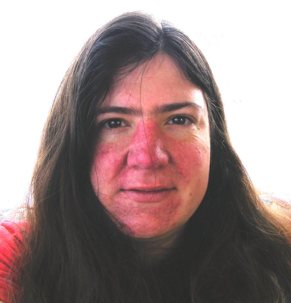 femme avec le visage rouge