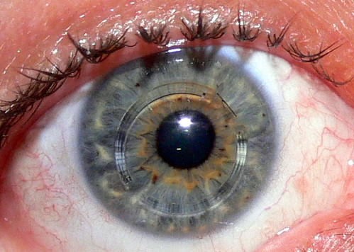 Intacs in my right eye | by Eddie's Pictures