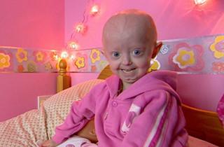 progeria8yrs