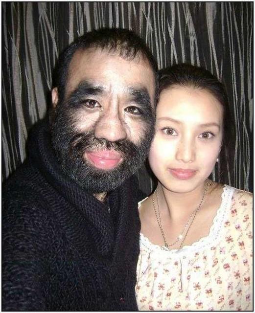 Hairy chinese pics