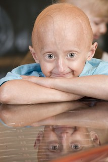progeria11yrs