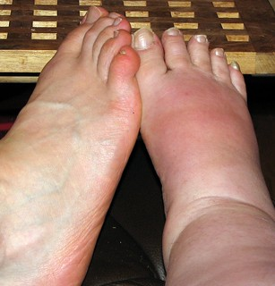 My swollen feet | by London looks