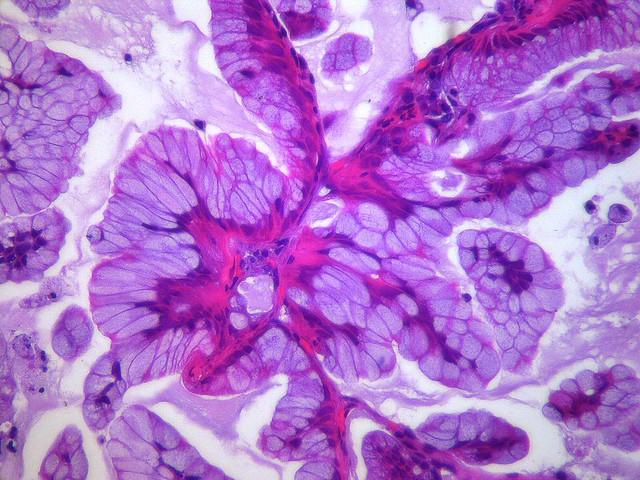 Invasive mucinous adenocarcinoma  Case 115