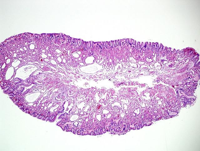 Qiao's Pathology: Fundic gland polyp