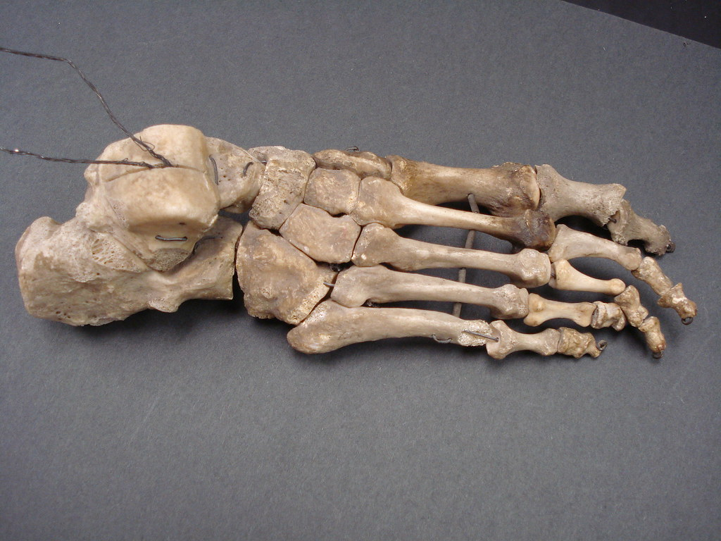 Bones of the Foot and Ankle | This is a real human foot, the… | Flickr