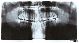Wisdom Tooth Woes | by tj.blackwell