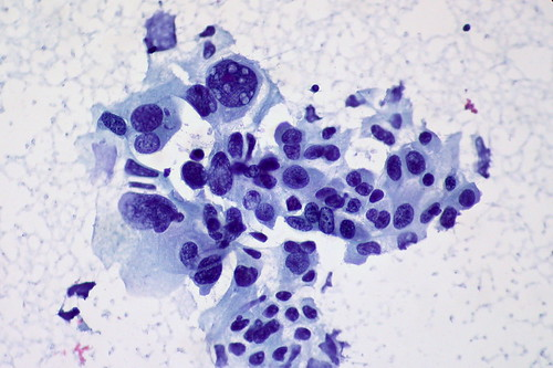 Non-small Cell Carcinoma of the Lung, FNA | by euthman