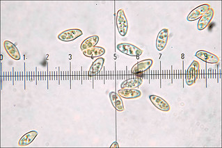 Suillus bovinus_1M | Motic B1-211A, magnification 1.000 x ...