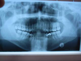 X-ray photograph   by matsuyuki