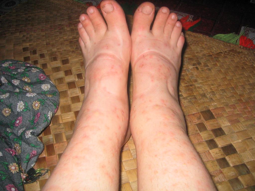 swollen legs/feet