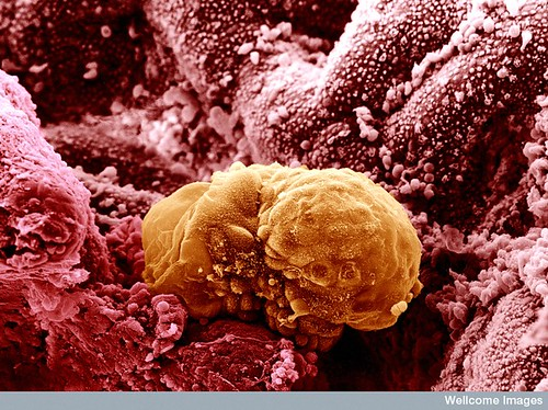 B0003308 6 day old human embryo implanting - coloured | by medicospace