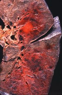 Kaposi sarcoma | by Pulmonary Pathology