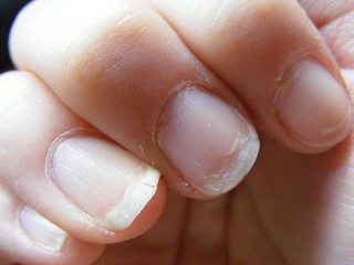 Dry, ugly nails... | by The Style PA