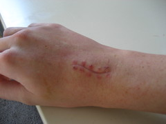ganglion cyst - stitches removed   ganglion cyst removal