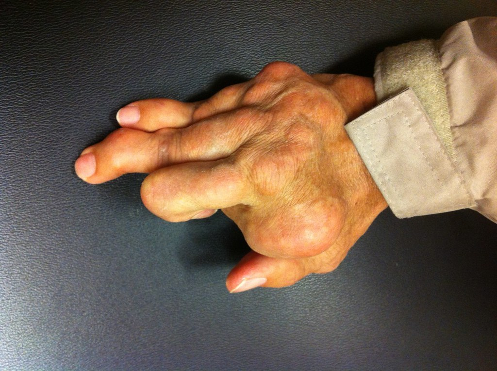 Gouty Arthritis Symptoms causes and treatment