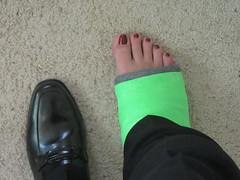 Leg Casts