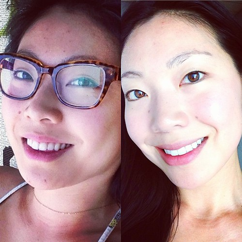 It works! I highly recommend it!  #clarisonic #clarisonicaria #itworks #facial #beauty #beforeafter #nomakeup #acne | by cindychu