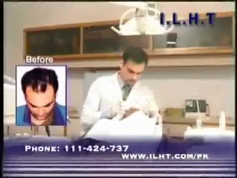 Hair Transplant Results-ILHT Pakistan