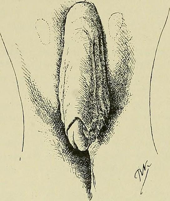 Image from page 128 of Hermaphroditismus beim Menschen