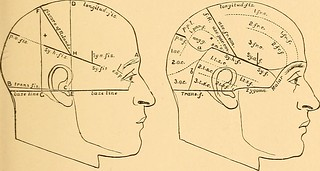 "Image from page 30 of ""Brain surgery"" (1893) 