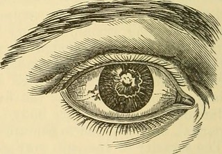 "Image from page 269 of ""A treatise on the diseases of the eye"" (1883) 