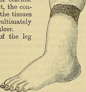 "Image from page 150 of ""A system of surgery"" (1895) 