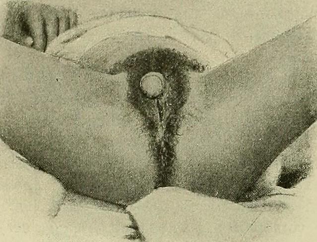 Image from page 110 of Hermaphroditismus beim Menschen