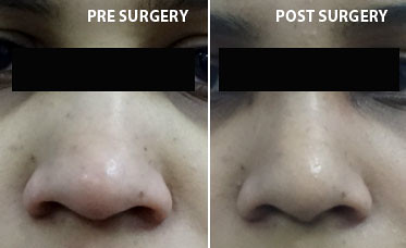 Rhinoplasty Pre And Post Before After Image Of Nose Surger Flickr