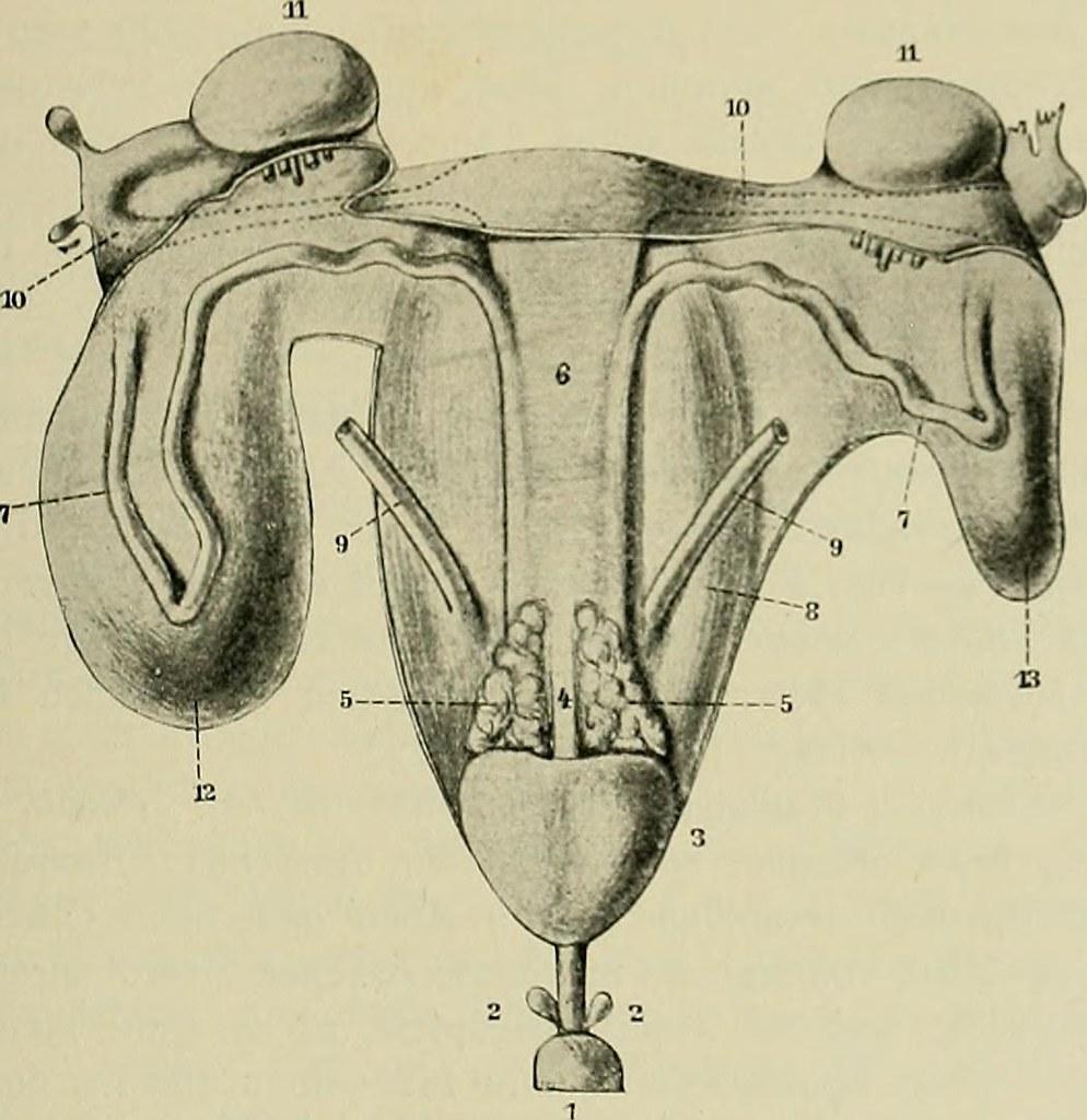 Image from page 315 of Hermaphroditismus beim Menschen
