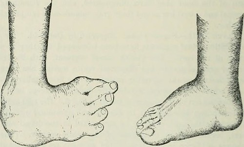 """Image from page 405 of """"International record of medicine"""" (1865)"""