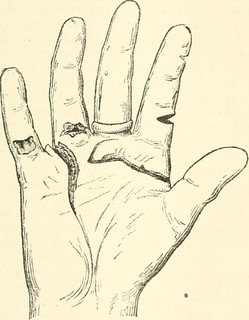 Image From Page 574 Of Medical Jurisprudence Forensic Me Flickr