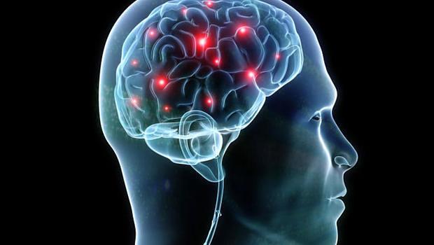 brain 18