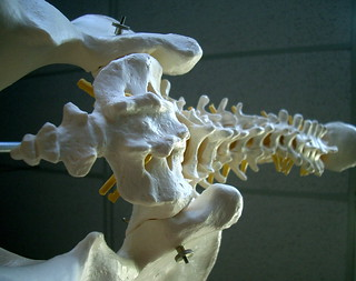 dem bones | by jurvetson