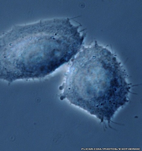 cell cellular micro plasma microscopic biology cells microscope mitochondria cho biological membrane microscopy nucleus molecular mtsu nuclei vitro phasecontrast chinesehamsterovary chok1 microfirecamera