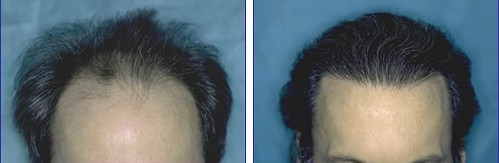 Hair Transplant Patient QJS | Bernstein Medical