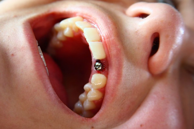 Chelsea S Dental Surface Piercing Aka Tooth Implant D Flickr