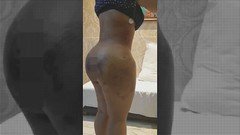 Brazilian Butt Lift (BBL) Surgery