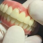 Prótese em zircônia fixa sobre Implantes