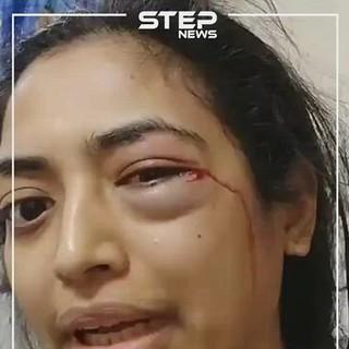 """""""تويتر"""" ينقذ زوجة من تعذيب زوجها بعد أن أشبعها ضرباً.. والسلطات الإماراتية تتحرك (فيديو)"""