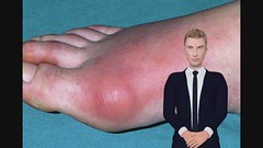 Gout: Get rid of Gout Now: Discover A New Gout Treatment