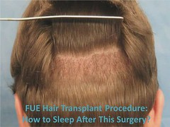 FUE Hair Transplant Procedure How to Sleep After This Surgery