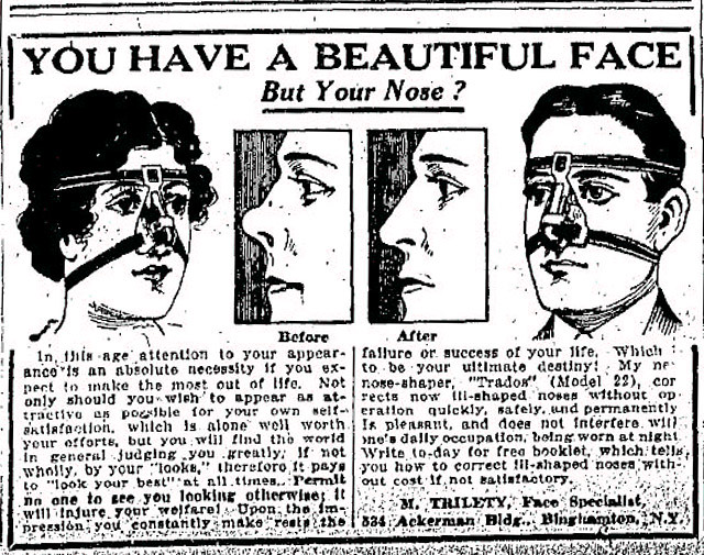 Vintage Ad #533: You Have a Beautiful Face, But Your Nose?