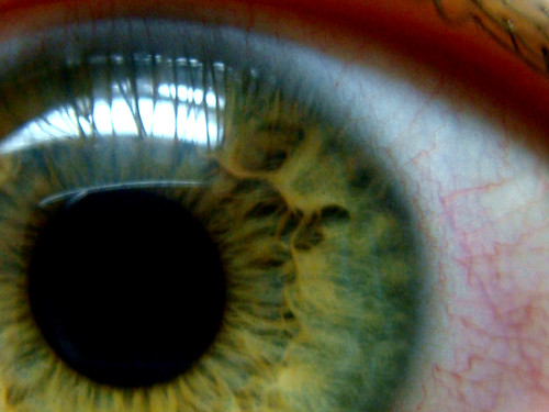 the anatomy of my eye