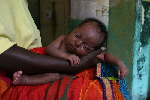 Severely malnourished child | by hdptcar