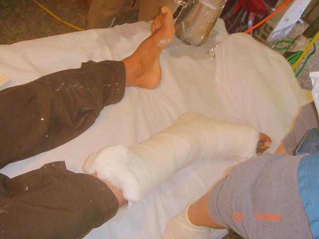 Leg Fracture | Atif Malik | Flickr