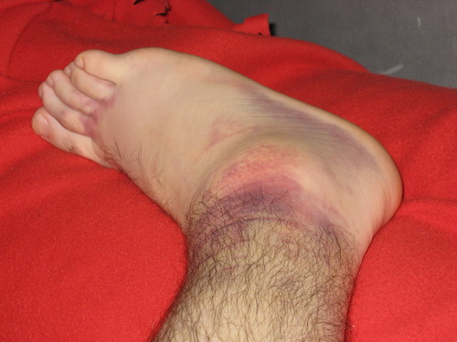 Ankle swell and internal bleeding | by Glen Bowman